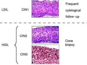 CIN cone biopsy