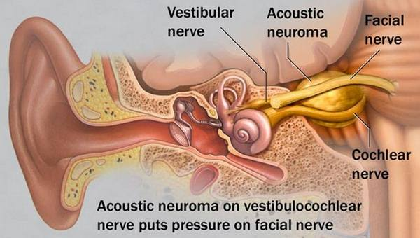 Acoustic Neuroma location