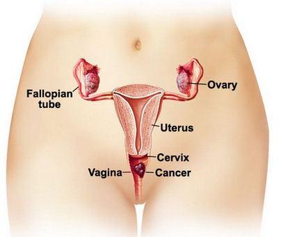 Vaginal cancer location