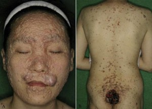Familial Trichoepithelioma pictures