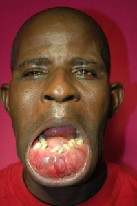 Jaw Cancer tumor image