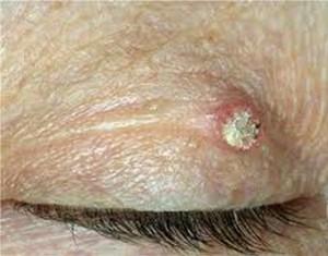 Keratoacanthoma pic