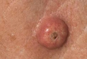Keratoacanthoma pictures