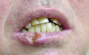 Lip Cancer picture