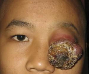 Rhabdomyosarcoma - Symptoms, Pictures, Survival Rate, Prognosis