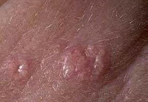 Sebaceous Adenoma pictures