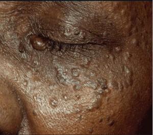 Trichoepithelioma pics