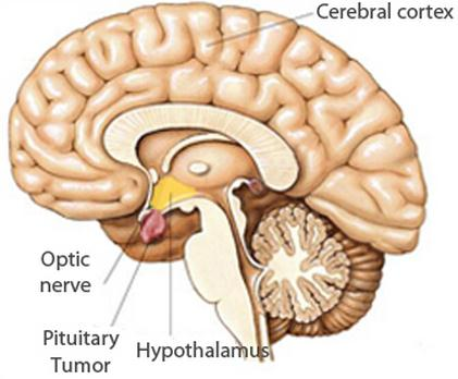 pituitary gland tumor picture