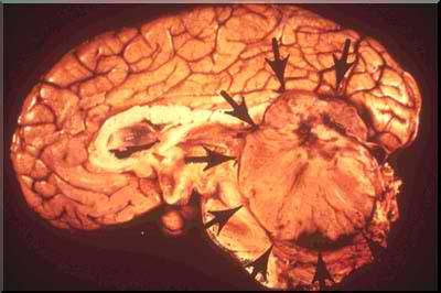 Direct Visualization of Medulloblastoma picture