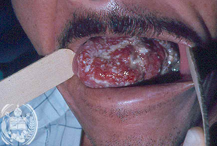 Tongue cancer picture