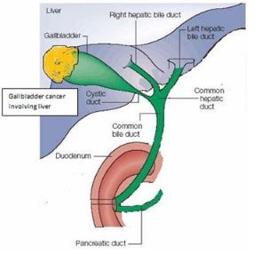 gall-bladder-cancer-image