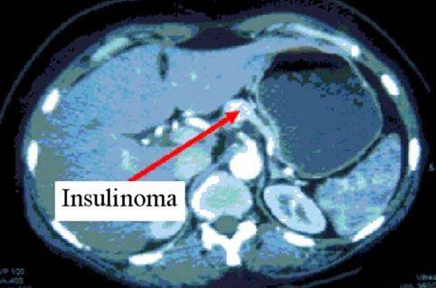 INSULINOMA CT SCAN