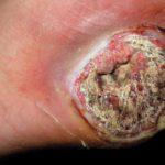 Epithelioid Sarcoma Image