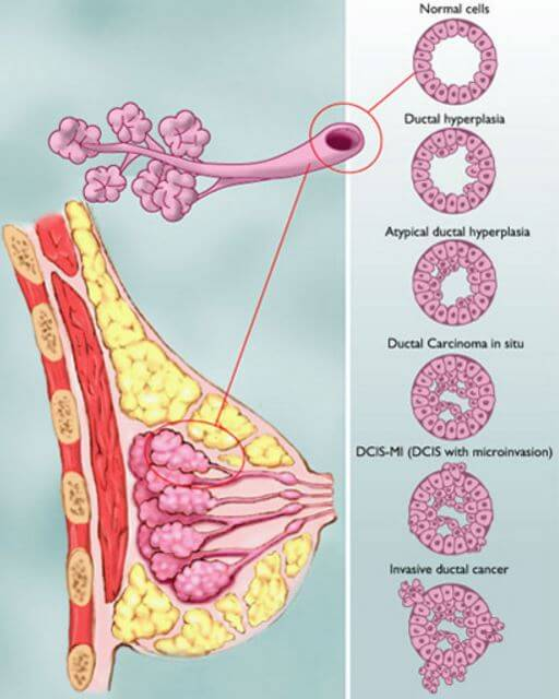 Histology of DCIS Breast Cancer