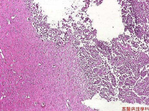Histology image of pineal gland tumor