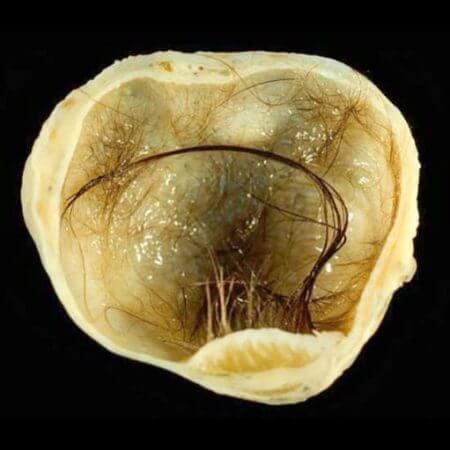 Ovarian Teratoma