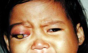 дети после лечения ретинобластомы электрические пневматические схемы