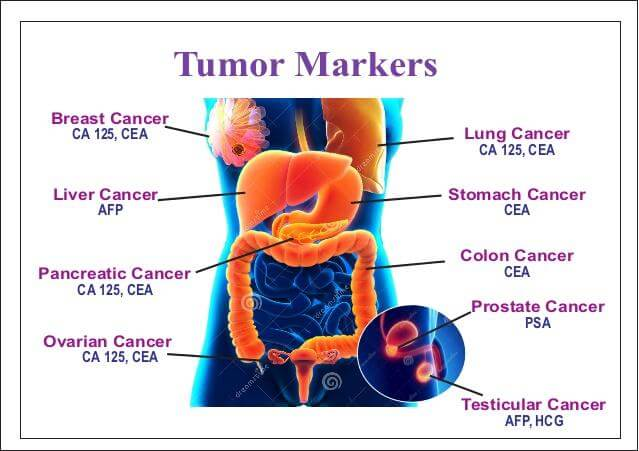 CEA Tumor Marker cancers