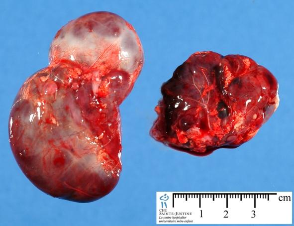 Adrenal Gland Tumor Picture 2