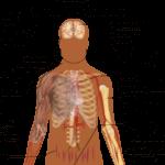 Adrenal Gland Tumor Picture 3