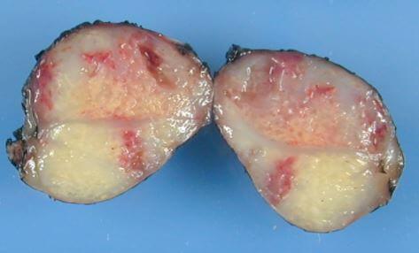 Alveolar Rhabdomyosarcoma Images