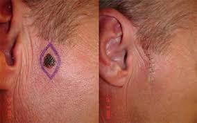 mole excision treatment