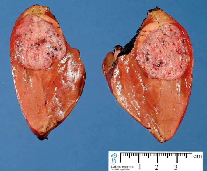 Hepatoblastoma Picture 1