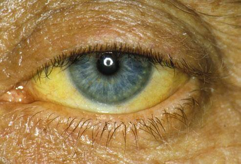 Afatinib yellow eye disease