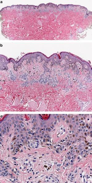precancerous mole