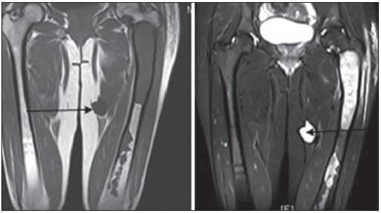 Myxoma Radiology