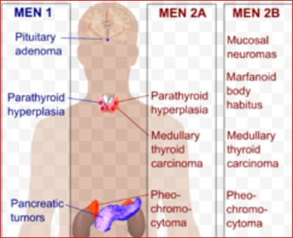 Multiple Endocrine Neoplasia Picture 2