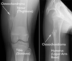 Osteochondroma 1