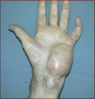 Histiocytoma