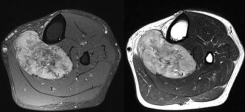 alveolar soft part sarcoma radiology