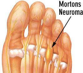 morton's neuroma picture 1