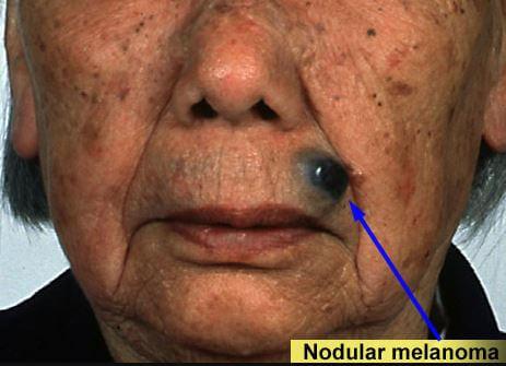 Nodular melanoma picture 2