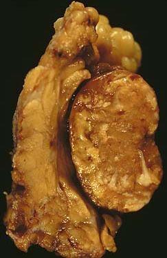 Warthin tumor images