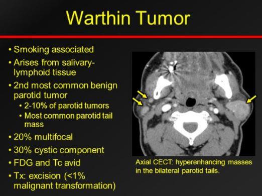 Warthin tumor pics mri scan