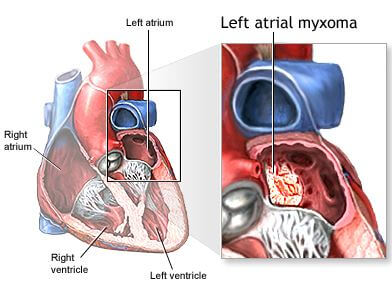 large myxoma of left atrium
