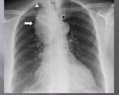 Thymoma chest x-ray